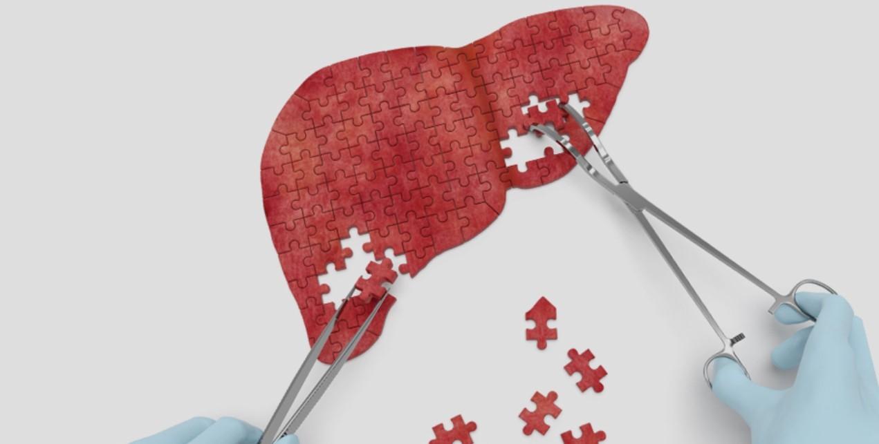 Сколько стоит лечение гепатита с в казани